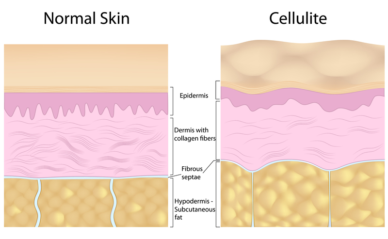 cellulite-vs-normal-skin