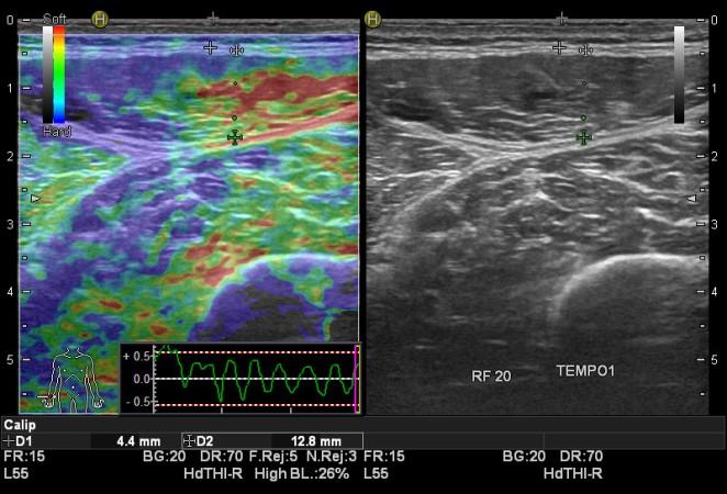 elastosonografia-tempo-1-dopo-lattivita-sportiva