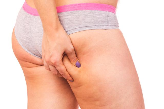 Cellulite-WomanGrabThigh-640x425.jpg