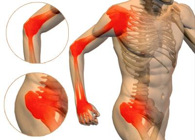joint-pain_5869143207