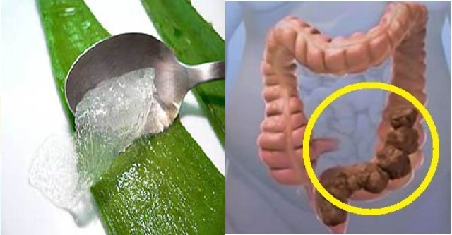 materiale-fecale-colon